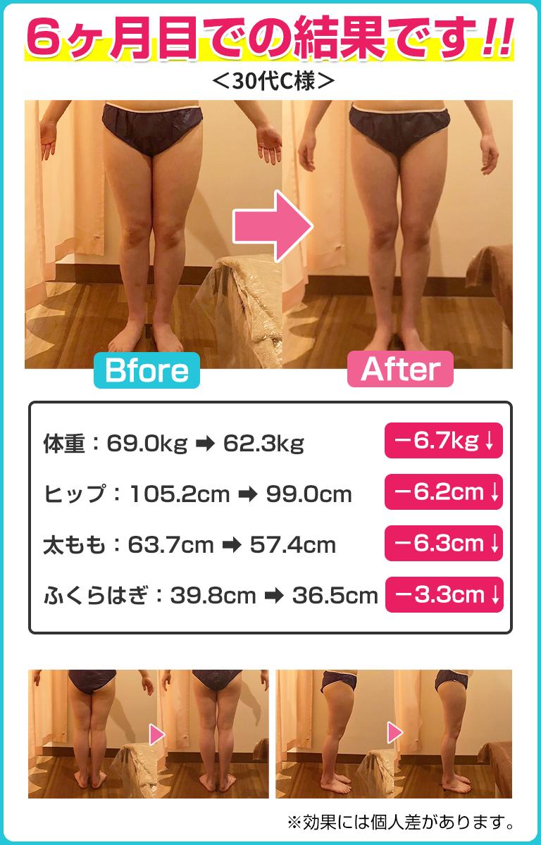 脚痩せBF01